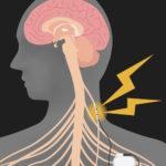 Brain & Peripheral Nerve Disorders